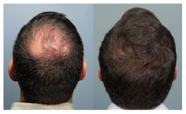 Is avodart better than propecia for hair loss